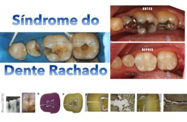 Síndrome Do Dente Rachado